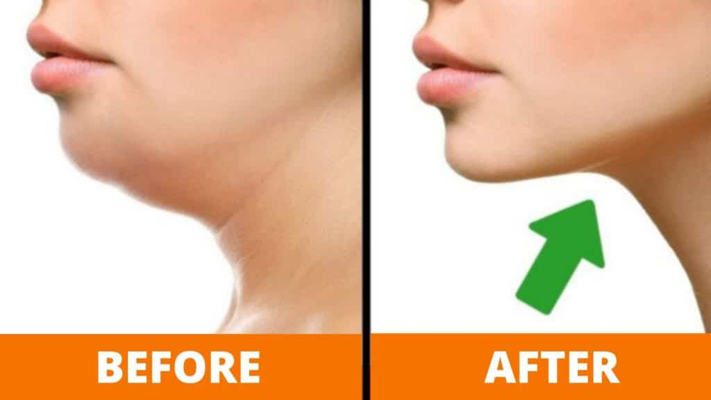 how to get rid of chin fat
